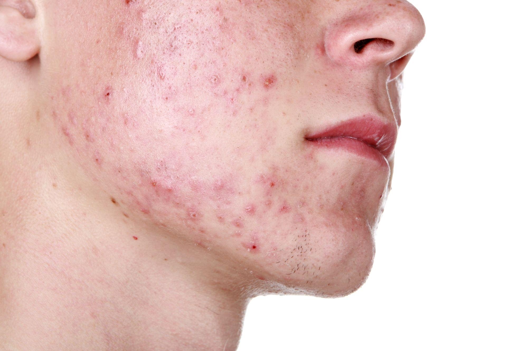 El acné es la pesadilla de todo adolescente
